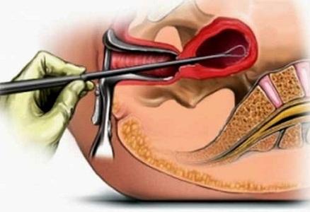 Показания к проведению процедуры биопсии
