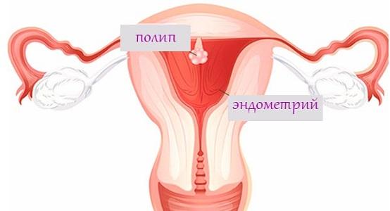 Полип эндометрия или тела матки