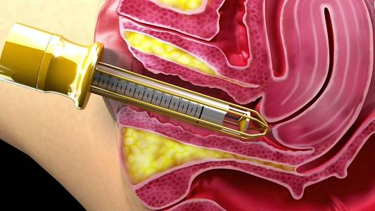 Преимущества лазеротерапии в гинекологии