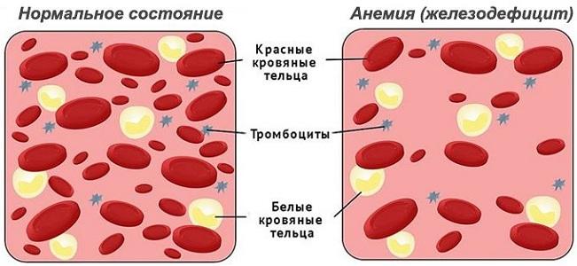 Причины повышения тромбоцитов во время месячных
