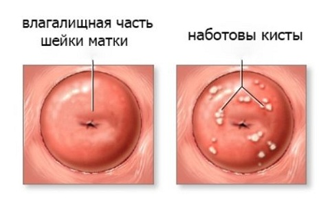 Причины появления наботовых кист шейки матки