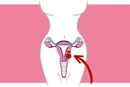 Пролиферирующая узловая миома матки