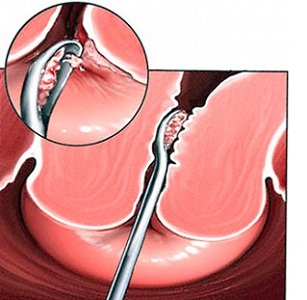 Процедура биопсия шейки матки