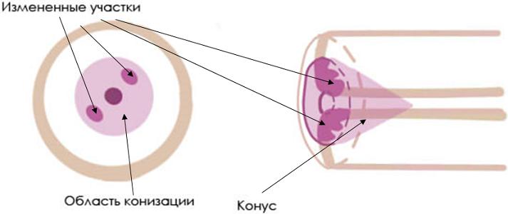 Процедура конизация шейки матки