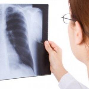 Можно ли делать рентген во время менструаций и беременности, какое влияние оказывает облучение на организм