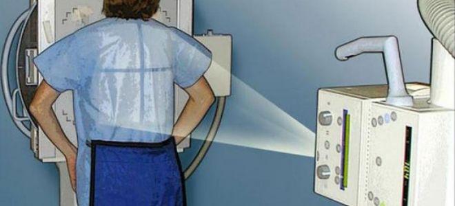 Рентгеновское излучение во время месячных