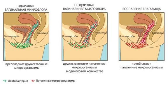 Риск развития эндометрита у женщин