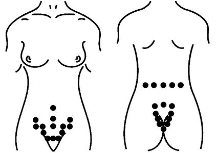 Способы применения пиявок в гинекологии