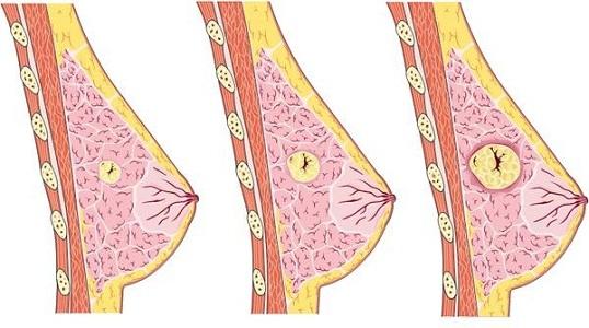 Увеличенные лимфоузлы в подмышках перед месячными при мастопатии