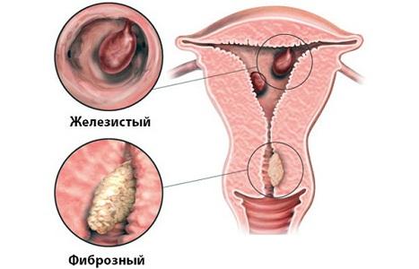 Виды полипов эндометрия