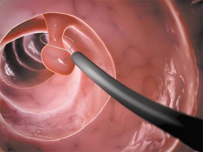 Выделения после гистероскопии полипов матки