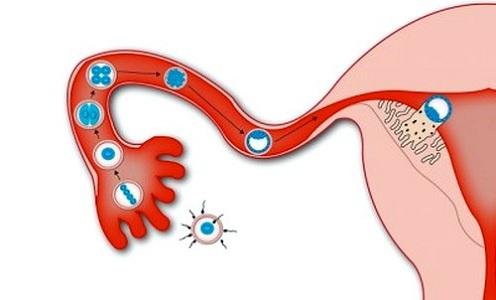 Выделения при имплантации