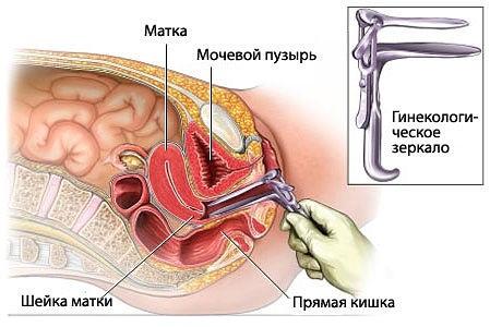 Выделения при травмировании гинекологическим зеркалом