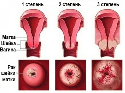 Выделения у женщин после климакса