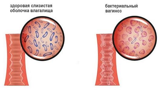 Зеленые выделения при бактериальном вагинозе