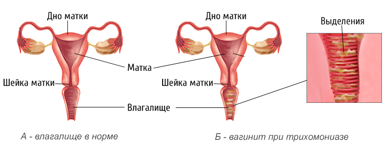 Зеленые выделения у женщин при трихомониазе