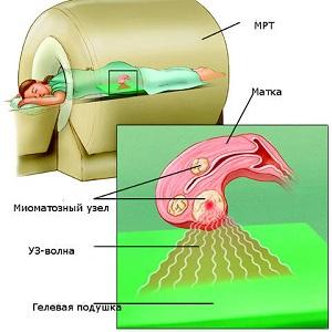 ФУЗ-абляция миомы матки
