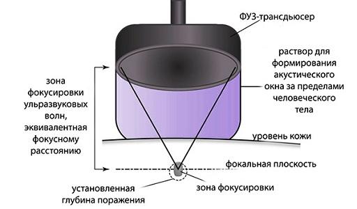 ФУЗ-абляция