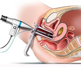 Все о процедуре гистерорезектоскопии