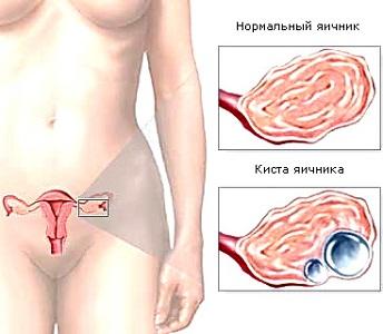Гормональная киста яичника