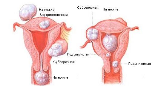 Классификация фибромиомы матки
