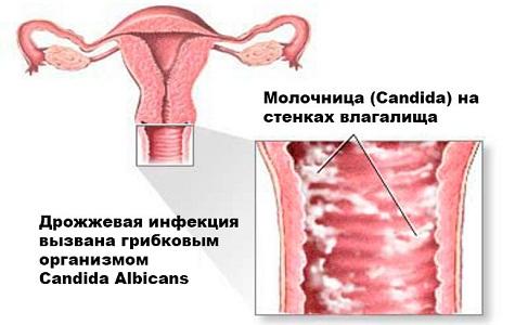 Молочница на ранних сроках беременности