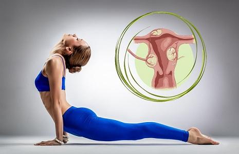 Польза спорта при миоме матки