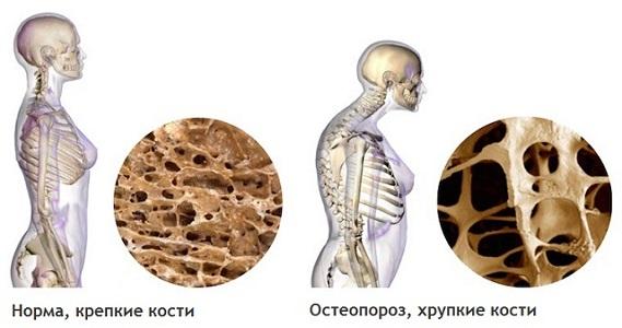 Постменопауза и остеопороз