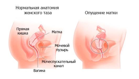 Причины опущения матки