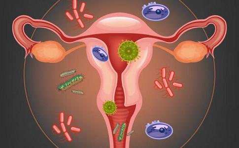 Как лечить вульвит у женщин: свечи, мази, растворы, народные средства