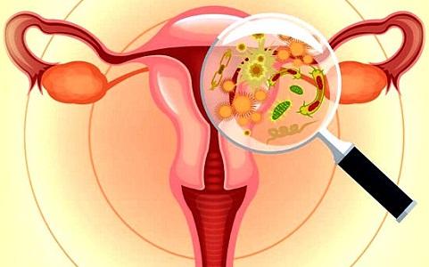 Причины развития лейкоплакии шейки матки
