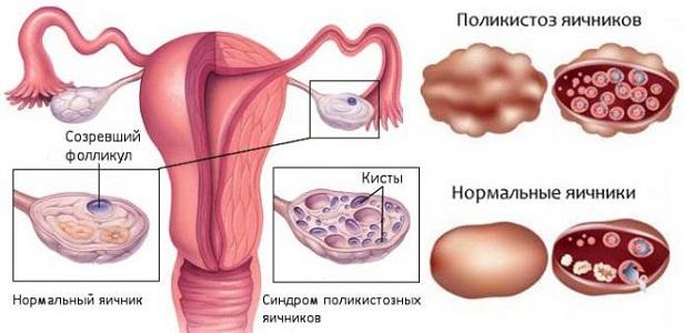 Сбой менструального цикла при поликистозе яичников