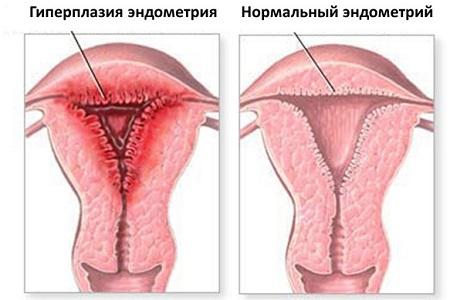 Выявление гиперплазии с помощью гистероскопии