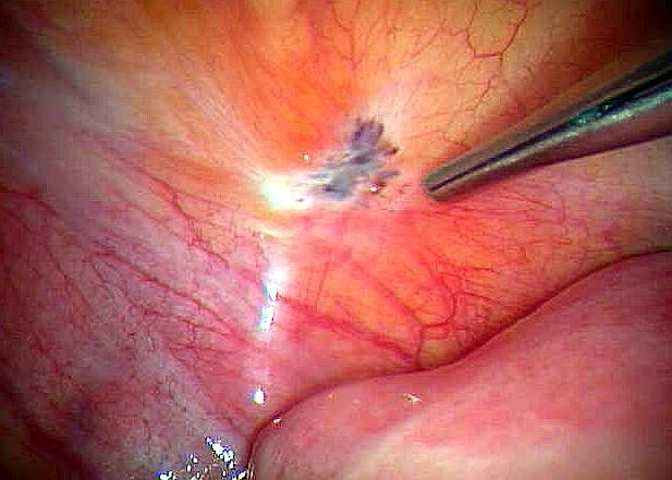 Эндометриоз мочевого пузыря