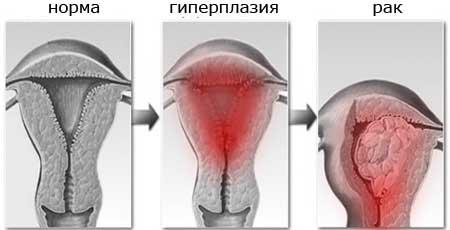 Гиперплазия эндометрия и рак