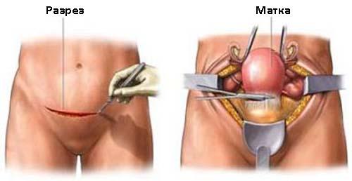 Хирургические лечение гиперплазии эндометрия