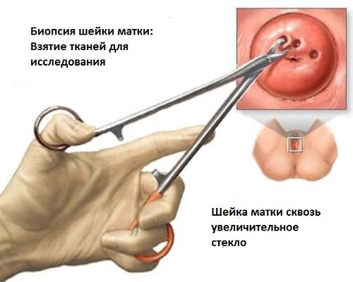 Месячные после биопсии