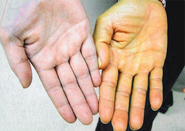 Противопоказания при лечении миомы матки спралью