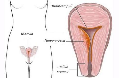 Гипоменорея при гиперплазии эндометрия