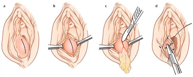 Марсупиализация кисты бартолиновой железы
