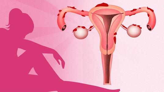 Неприятный запах при эндометриозе
