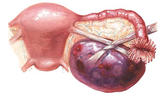 Перекрут параовариальной кисты