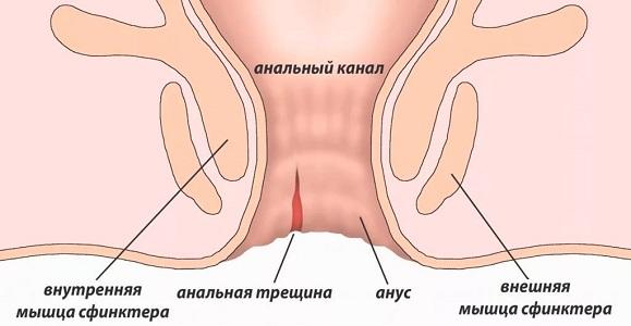 Противопоказания колоноскопии при месячных и беременности